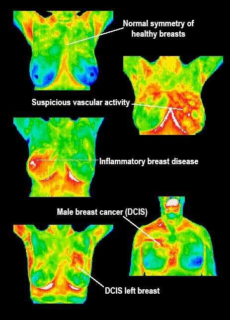 Monitor breast health safely with sensitive Thermography.